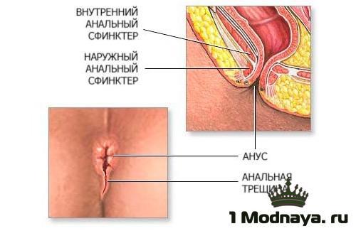 Зуд в заднем проходе у женщин причины и лечение