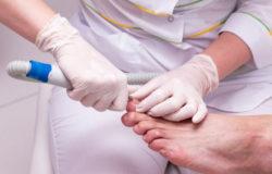вросший ноготь на ноге как лечить в домашних условиях